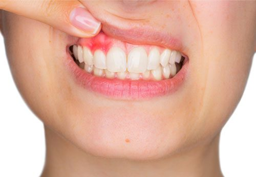 Do you need to worry about gum disease with dentures?